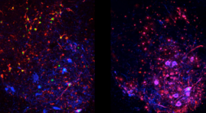 ALS disease under microscope
